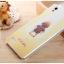 เคสOppo Mirror5 ,a51f -GView Hard3D case [Pre-Order] thumbnail 21