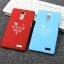 เคส OPPO R7 Plus - Vogue Mini hard Case [Pre-Order] thumbnail 2