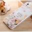 เคสOppo Mirror5 ,a51f -GView Hard3D case [Pre-Order] thumbnail 18