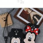 Case Huawei Mate9Pro - เคสซิลิโคนตัวการ์ตูน สไตล์เกาหลี(พรีออเดอร์)
