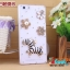 เคส OPPO R1 - Jewely Hard Case [Pre-Order] thumbnail 28