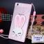 เคส OPPO R5- Rabbit Silicone case#2 [Pre-Order] thumbnail 3